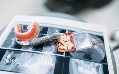 Protesi a carico immediato: intervento rapido e sicuro