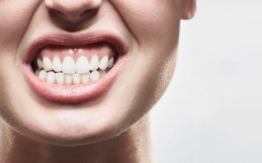 malocclusione-dentale